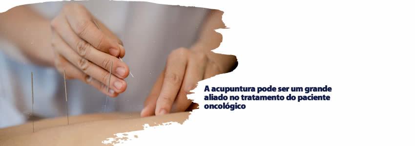 A acupuntura pode ser um grande aliado no tratamento do paciente oncológico